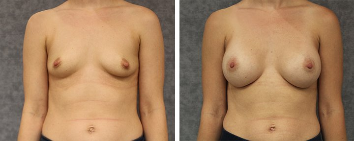 Breast Augmentation Baton Rouge Patient 4 | Erick Sanchez, MD Plastic Surgery