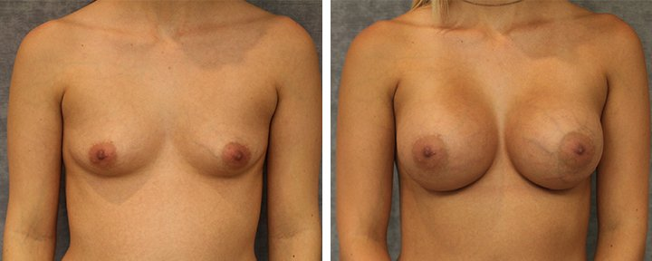 Breast Augmentation Baton Rouge Patient 3 - 2 | Erick Sanchez, MD Plastic Surgery
