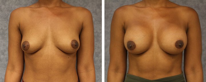 Breast Augmentation Surgery Baton Rouge Patient 5 | Erick Sanchez, MD Plastic Surgery