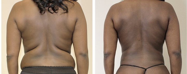 how-much-weight-can-i-lose-with-liposuction