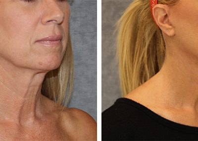 Lower Face/Neck Lift