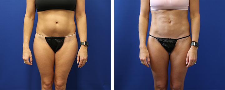 Abdominal Liposuction on Active Mom