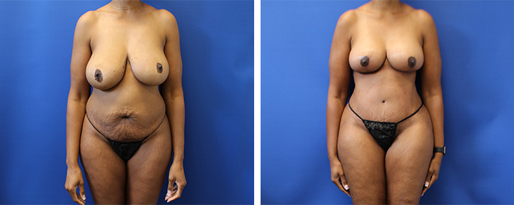 Mommy Makeover with Breast Lift and Tummy Tuck