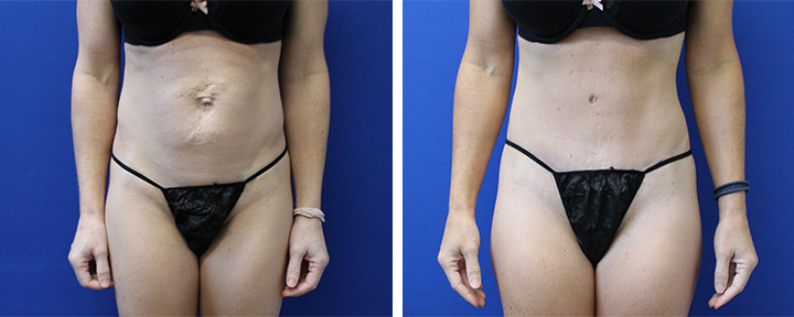 Tummy Tuck with Muscle Repair on Fit Mom
