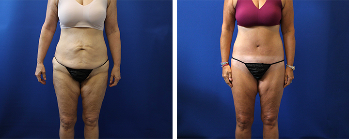 Extended Tummy Tuck after 45lb Weight Loss