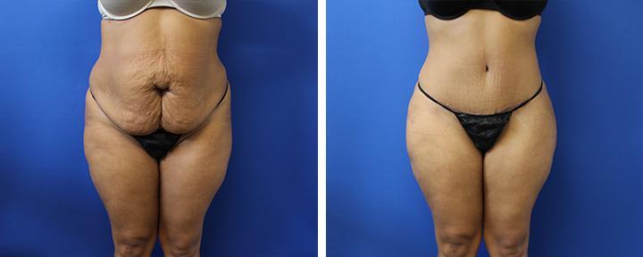 Abdominoplasty with 360 Liposuction