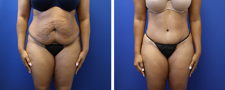 Tummy Tuck with 360 Liposuction