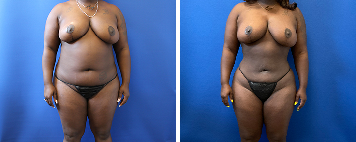 360 Liposuction
